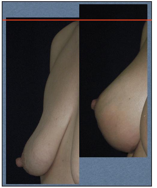 Mastopexia con cicatriz vertical y prótesis