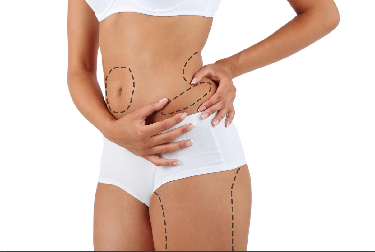 Técnica de Liposucción. Cirugia Estética Córdoba