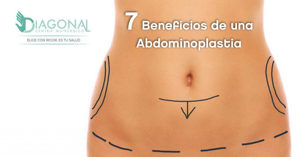 abdominoplastia-beneficios