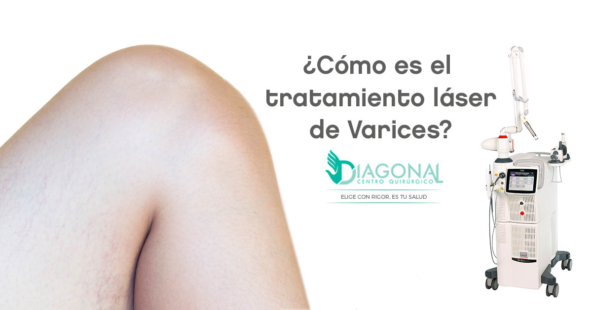 terapia-laser-varices