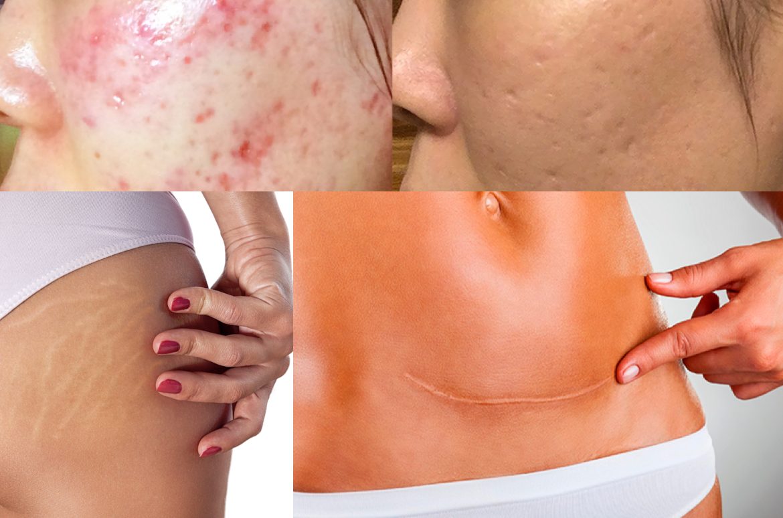 Eliminación del acné con láser en Diagonal Córdoba