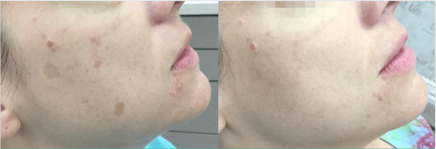 Tratamiento láser de las manchas en la cara. Diagonal Córdoba