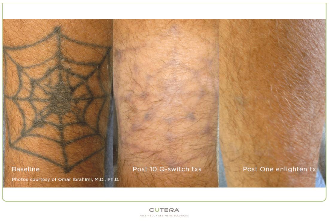 Borrar Tatuajes Con Láser Diagonal Centro Quirúrgico