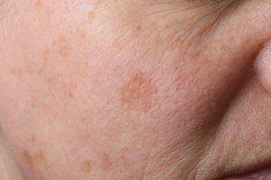 Eliminación de manchas en la cara