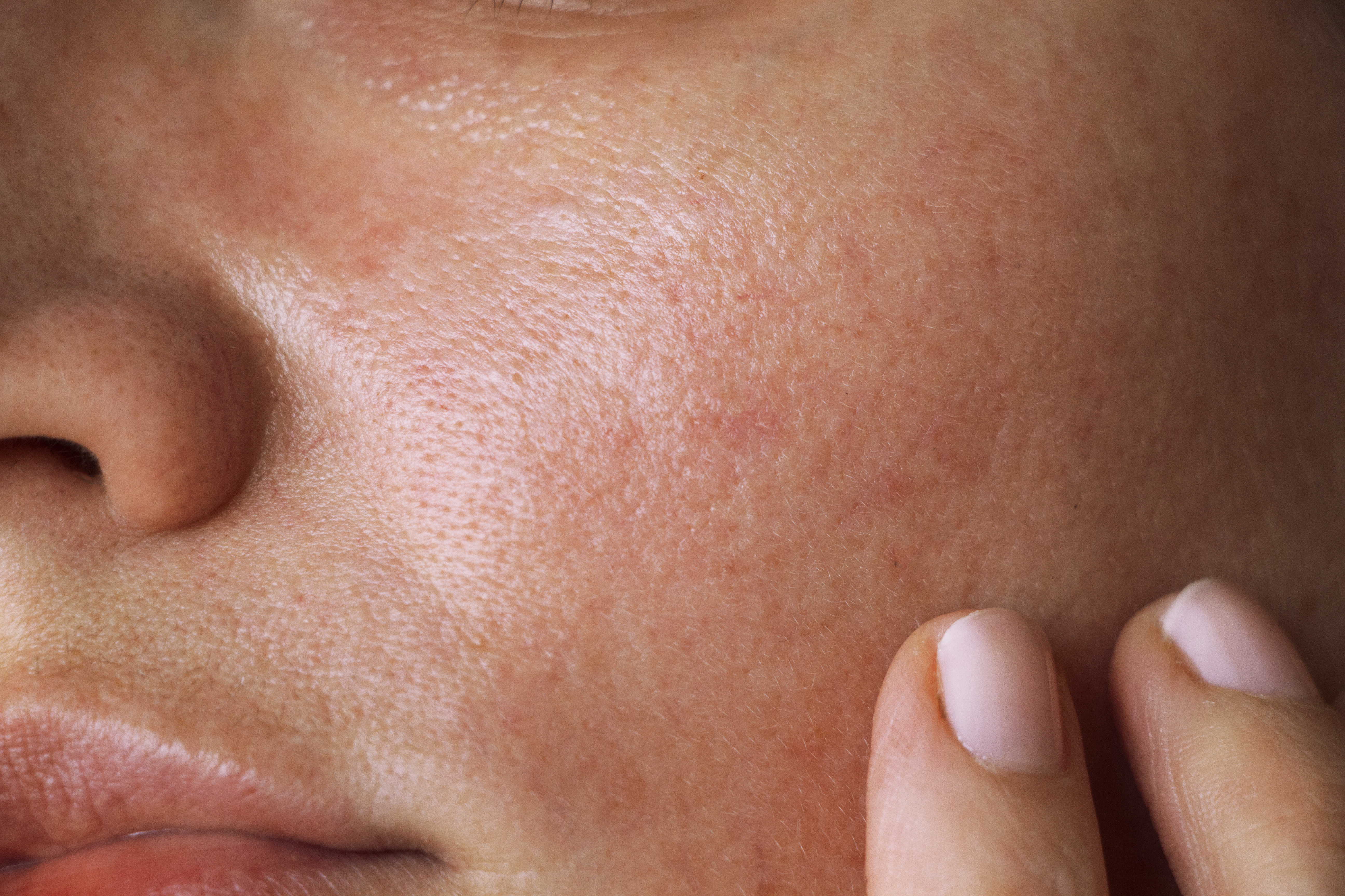 Eliminación de manchas en la cara. Diagonal Láser Córdoba