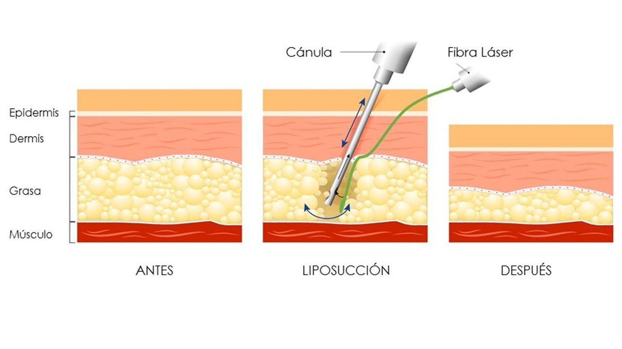 Tecnica de liposuccion asistida por laser